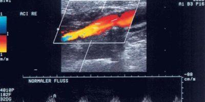 Abbildung 3: Duplexsonographie - Karotis